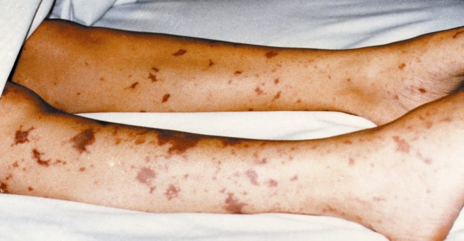 Which Rashes to Worry About: Slideshow - Medscape
