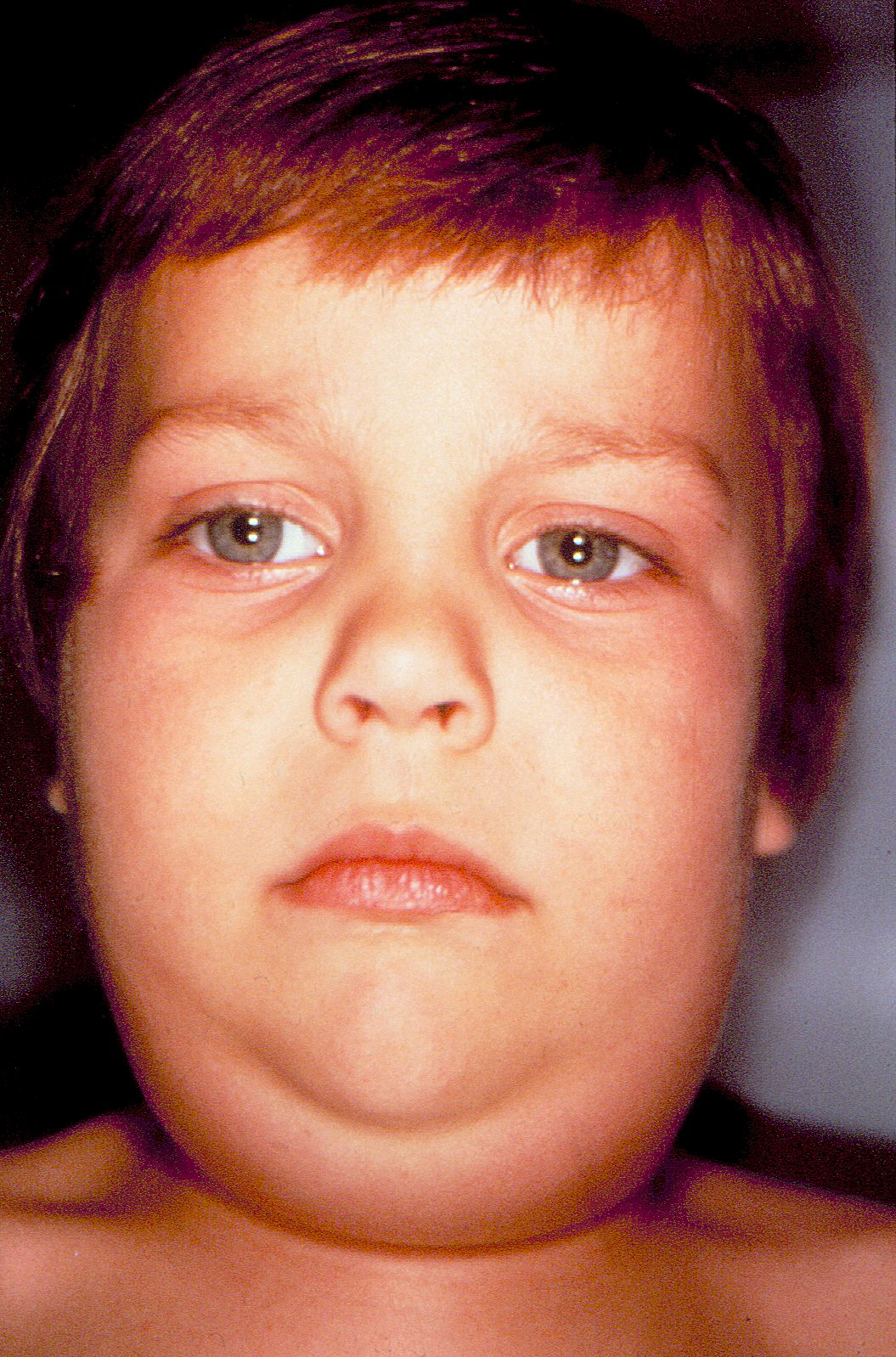 Pictures Of Adults With Mumps 90