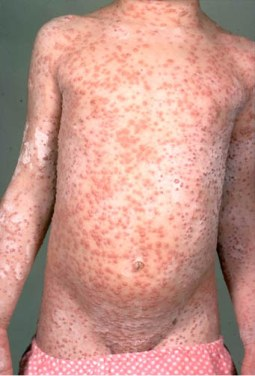 Varicella Vaccine For Adults 55